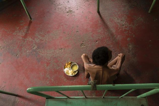 German Doctors-Fotos bei PR-Bild Award ausgezeichnet / Bilder zeigen Elend in Indien