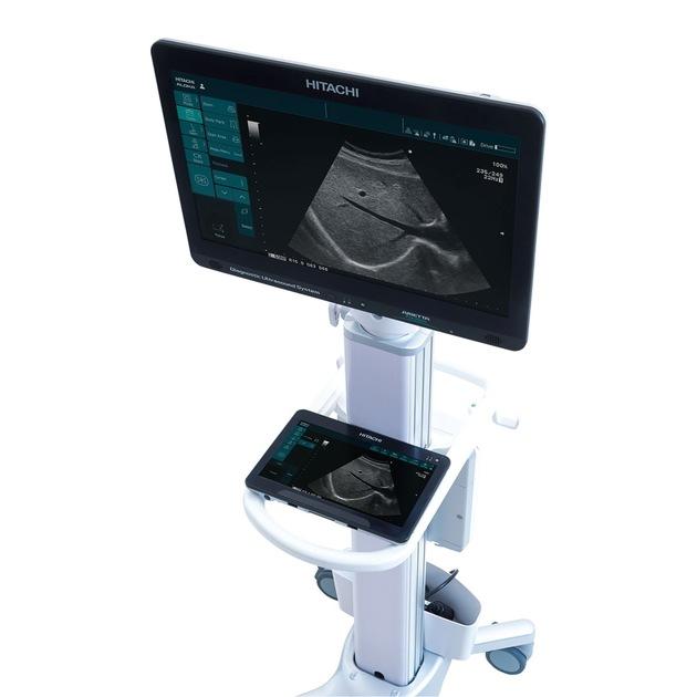 Hitachi Aloka launches two new, highly flexible Diagnostic Ultrasound Systems, ARIETTA Precision and ARIETTA Prologue