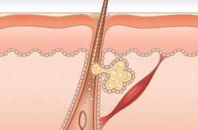 Dr. Wolff-Forschung: British Journal of Dermatology veröffentlicht neue Studie / Coffein fördert Haarwachstum