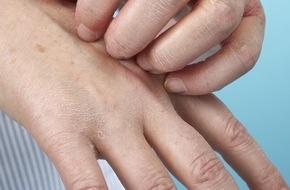 Berufsgenossenschaft für Gesundheitsdienst und Wohlfahrtspflege: Hautprobleme im Beruf: Rechtzeitig gegensteuern (FOTO)