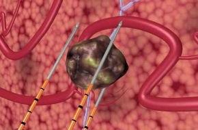 Klinik für Prostata-Therapie Heidelberg: Elektrisches Feld zerstört gezielt Prostata-Krebs / Heidelberger Klinik für Prostata-Therapie nutzt erstmals die Irreversible Elektroporation zur schonenden Behandlung von Prostata-Krebs