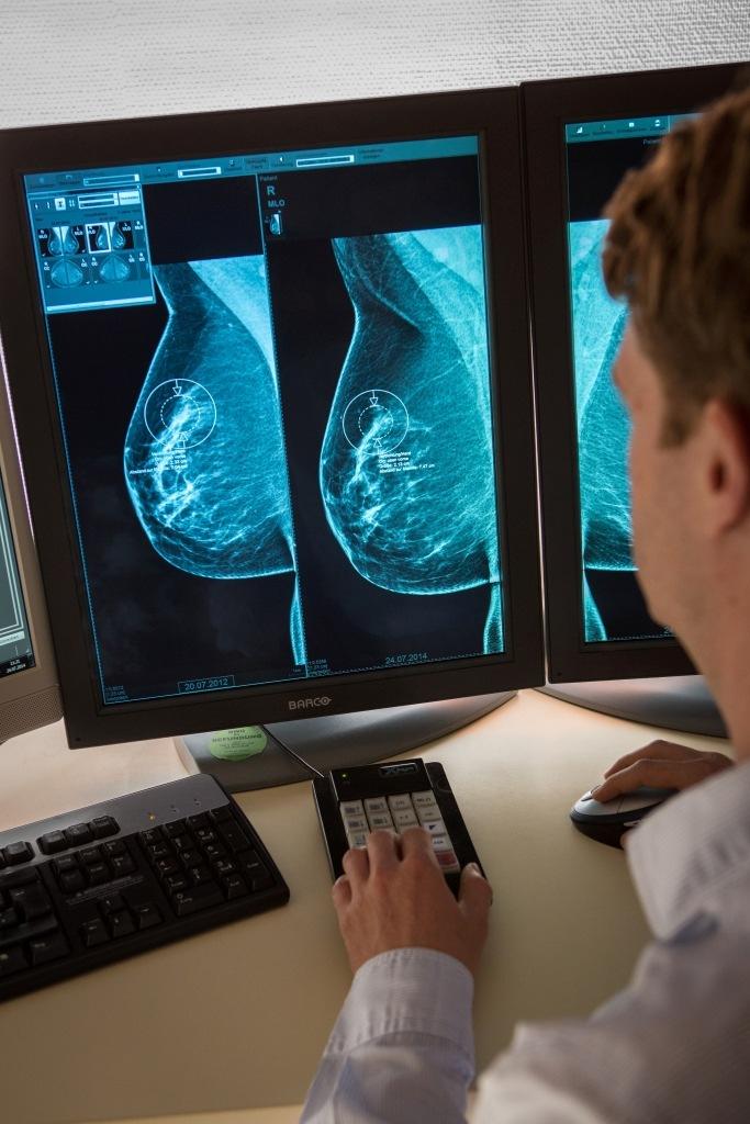 Fachgesellschaften empfehlen das Mammographie-Screening-Programm