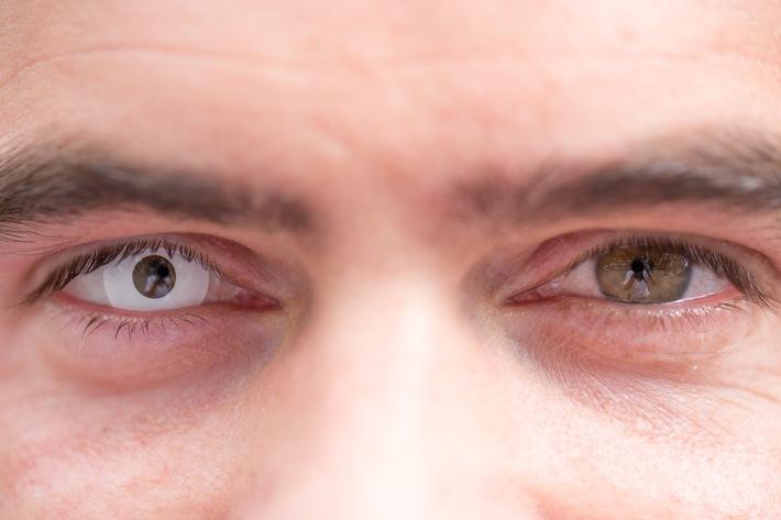 Halloween: Vorsicht bei farbigen Kontaktlinsen