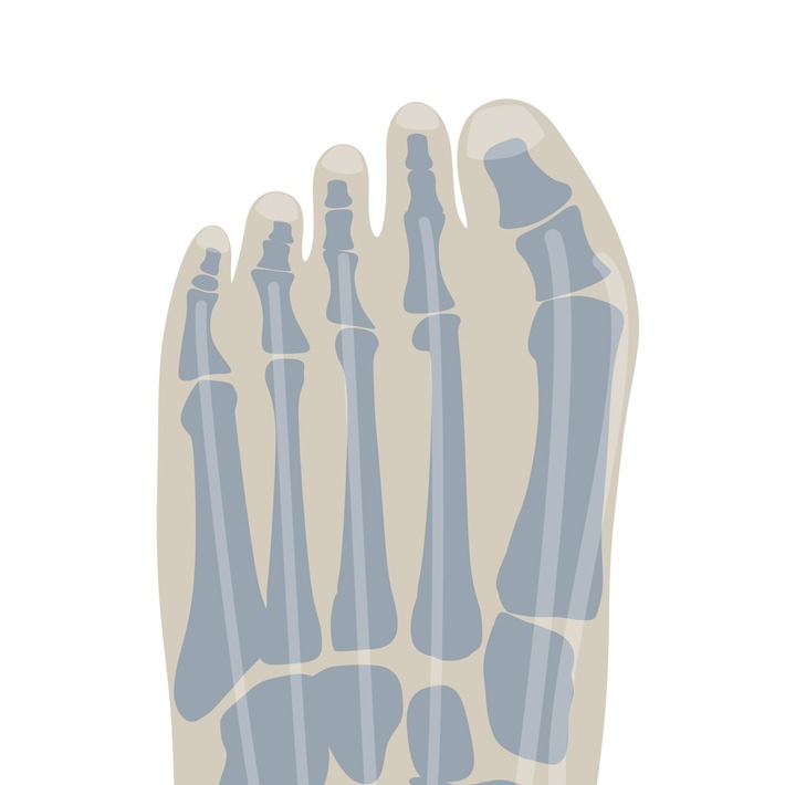 Bequem geht vor - Wie Schuhe die Bildung von Hallux Valgus beeinflussen