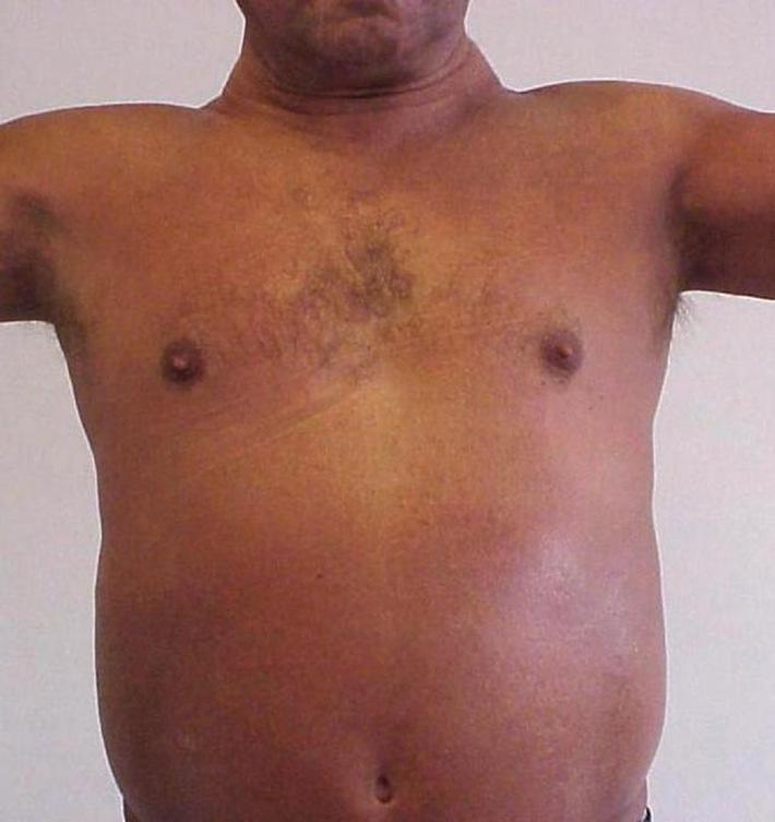 Erster internationaler Patiententag für Sklerodermie und Sklerodermie ähnliche Krankheiten am 19. April 2008