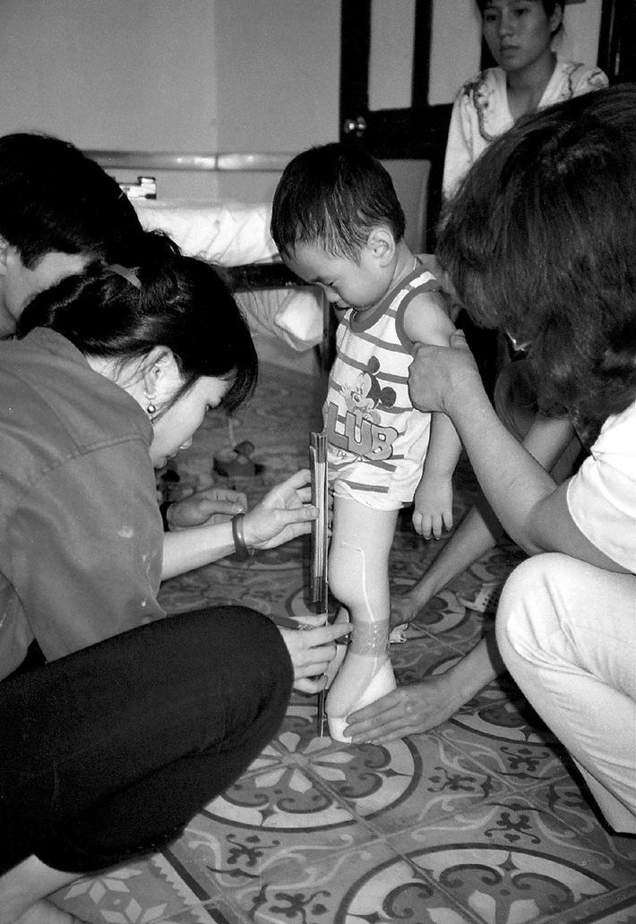 Programm Sozialmedizin zur Fürherkennung von Behinderungen in Vietnam erweitert: Green Cross Schweiz hilft in Vietnam behinderten Kindern