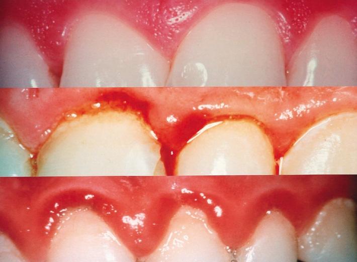 Zuckerkrank macht Zähne krank
