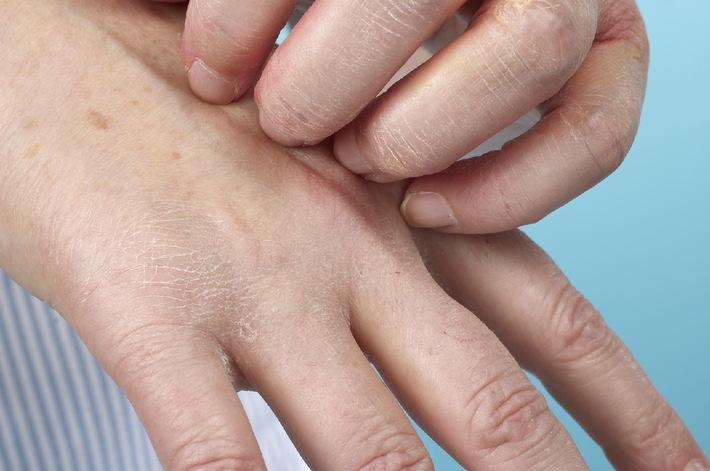 Hautprobleme im Beruf: Rechtzeitig gegensteuern