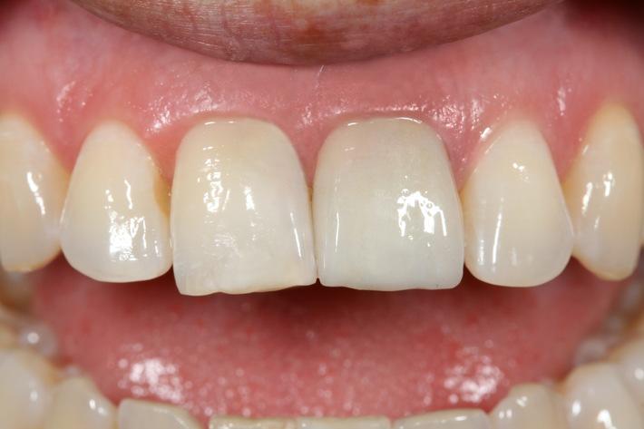 Top Zahnästhetik zum sensationellen Preis / Die iKrone® gibt es jetzt auch für den Frontzahnbereich