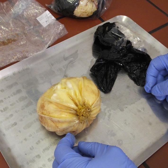 ZOLL-F: Zoll nimmt Körperschmugglerin fest: Kokain in Brustimplantaten