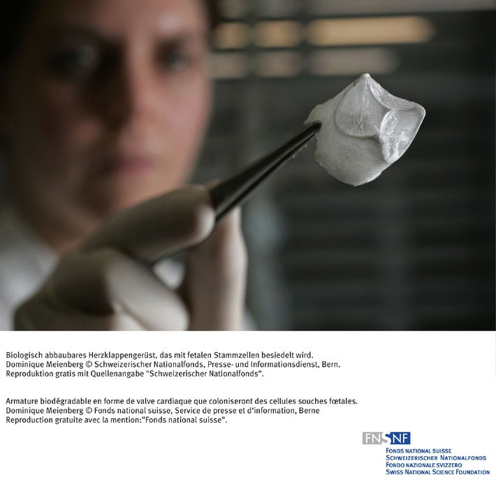 FNS: Image du mois février 2007: Recherche fondamentale pour le traitement des malformations cardiaques congénitales
