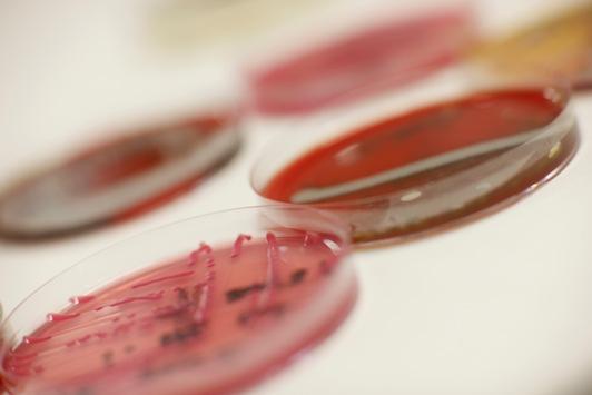 Hygienemaßnahmen gegen gefährliche Bakterien