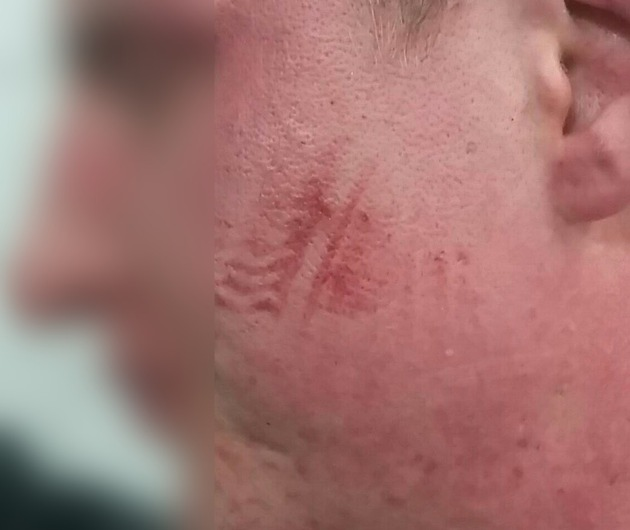 Schuhabdruck im Gesicht  Foto: Bundespolizei