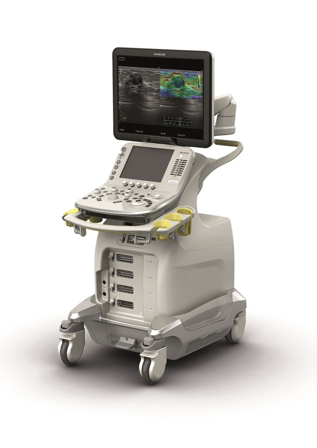 Hitachi Aloka Medical presents the New Brand ARIETTA(*1) with two New Ultrasound Products ARIETTA 70 and ARIETTA 60 (PICTURE)