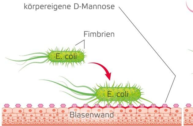 Endlosschleife Blasenentzündung / Wege aus dem Teufelskreis der häufig wiederkehrenden Infektion
