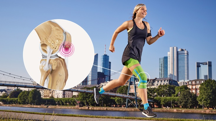 Patellaspitzensyndrom: Hilfe bei Schmerzen an der Kniescheibenspitze