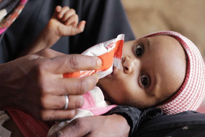 2,3 Millionen Kinder unter fünf Jahren sind im Jemen von akuter Unterernährung bedroht / Weiterer Text über ots und www.presseportal.de/nr/50131 / Die Verwendung dieses Bildes ist für redaktionelle Zwecke unter Beachtung ggf. genannter Nutzungsbedingungen honorarfrei. Veröffentlichung bitte mit Bildrechte-Hinweis.