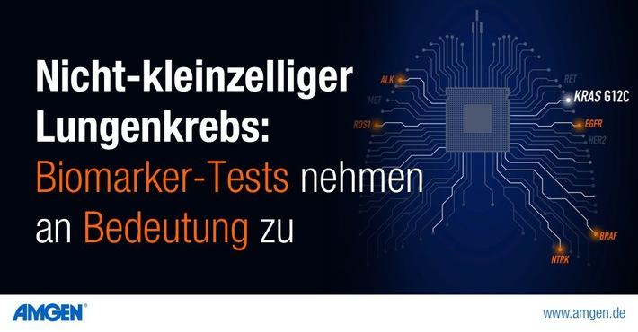 Amgen: Lungenkrebs - Biomarker-Tests nehmen an Bedeutung zu. / Weiterer Text über ots und www.presseportal.de/nr/30303 / Die Verwendung dieses Bildes ist für redaktionelle Zwecke unter Beachtung ggf. genannter Nutzungsbedingungen honorarfrei. Veröffentlichung bitte mit Bildrechte-Hinweis.