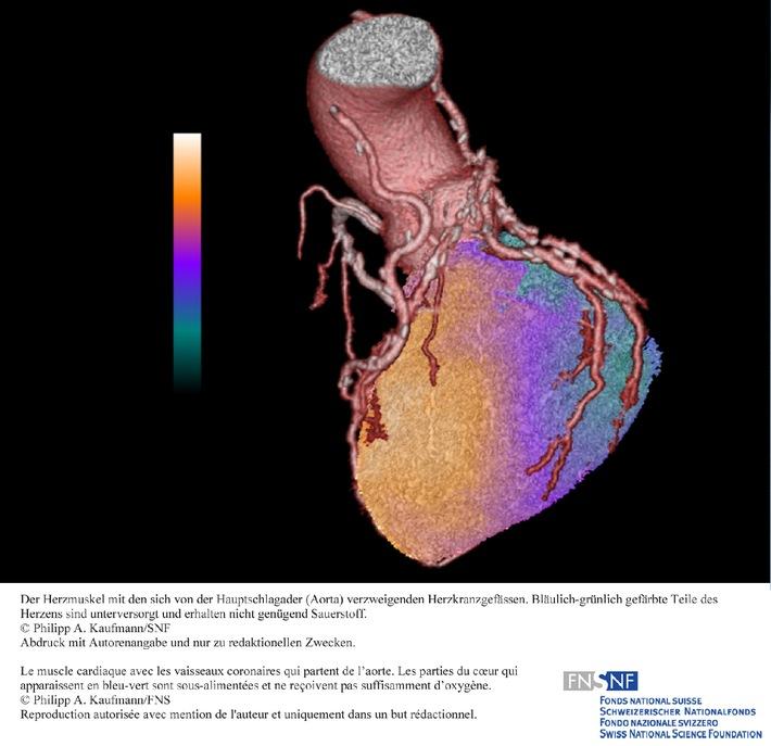 SNF: Bild der Forschung Mai 2010: Kombiniertes Bildgebungsverfahren verbessert Diagnose