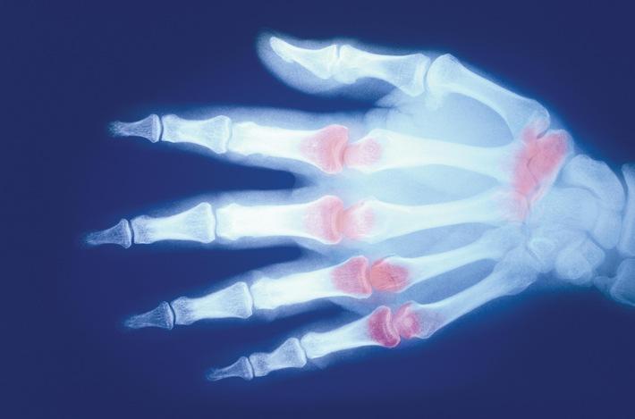 """X-ray of the Hand Revealing Inflamed Joints. """"Bild nur zur Verwendung in Zusammenhang mit Meldungen zu Amgen"""". Weiterer Text über ots und www.presseportal.de/nr/30303 / Die Verwendung dieses Bildes ist für redaktionelle Zwecke honorarfrei. Veröffentlichung bitte unter Quellenangabe: """"obs/Amgen GmbH/©SuperStock"""""""