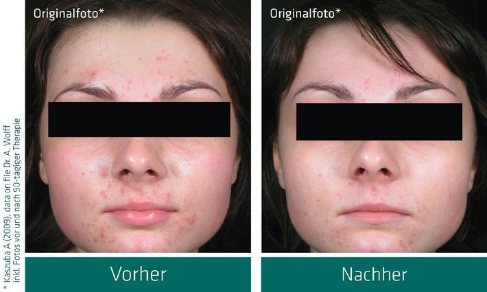 Erstmalig - Aknecreme als Medizinprodukt in der Drogerie und Apotheke / Doppelblind-Studie belegt Wirkung (mit Bild)