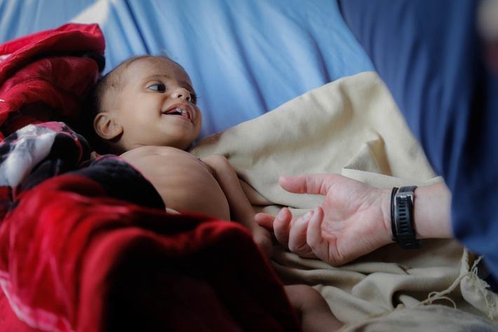 Jemen: 80 Prozent aller Kinder sind inzwischen auf humanitäre Hilfe angewiesen. | © UNICEF/UN0252406/Fuad