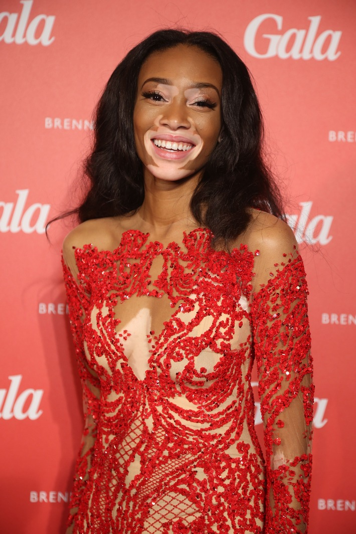 "GALA SPA AWARDS 2015: Model Chantelle Winnie ist ""Beauty Idol"" des Jahres"