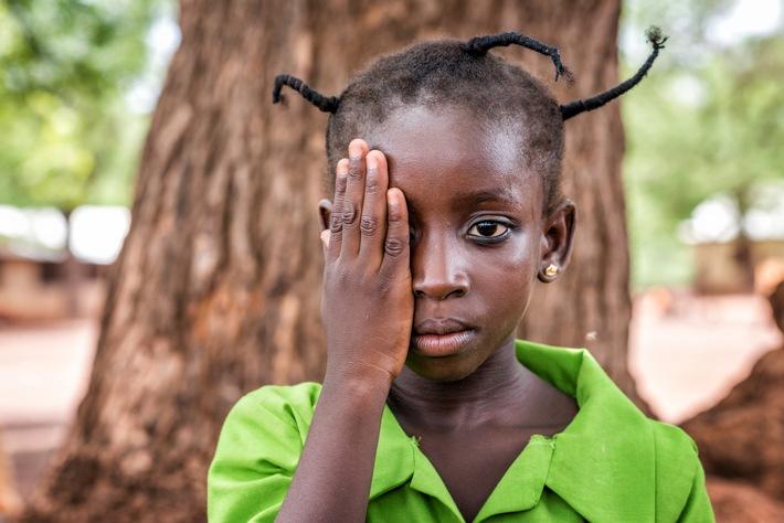 Zahngold spenden, Augenlicht schenken / Der 12. Oktober 2017 ist der Welttag des Sehens