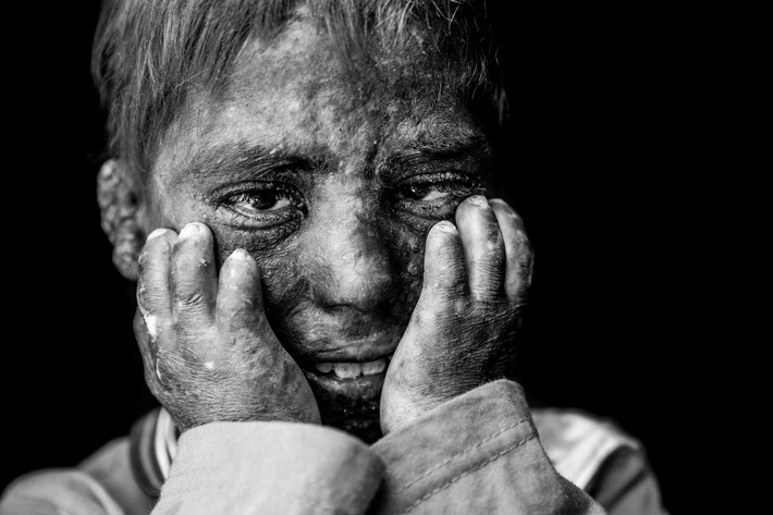 Hilfsorganisation humedica gewinnt erneut PR-Bild Award