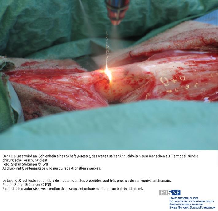 SNF: Bild des Monats April 2007: Eine Technik, die das Gewebe schont
