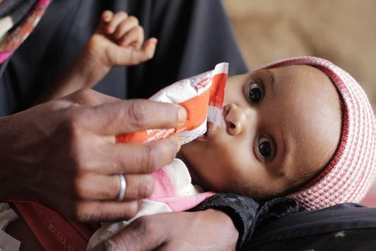 Jemen: Die Unterernährung von Kindern wächst, während die Finanzmittel für Hilfe in der größten humanitären Krise der Welt gekürzt werden