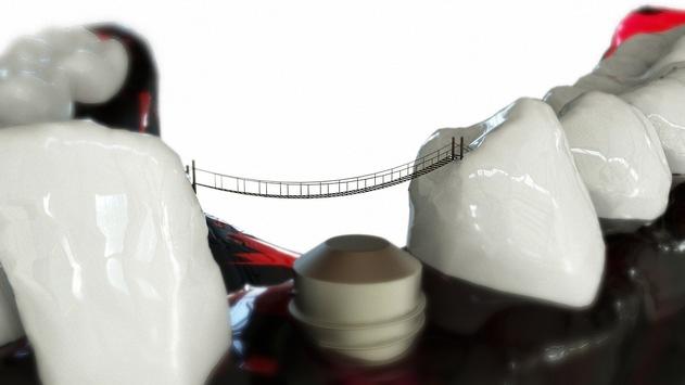 Zahnersatz Dentallabor Westend, Charlottenburg, Dahlem – Zahnfabrik Berlin ist der richtige Partner vor Ort